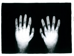 Veronica Bisesti. Progetto Violention II. Intervento di cucito bianco su carta fotografica. Mani Ustionate.